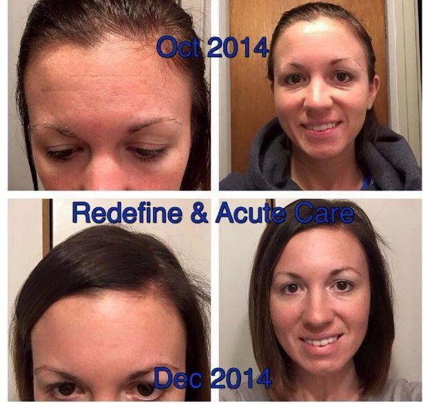 Meghan was a Rodan and Fields customer who was so blown away by her results (in just two months of using Acute Care strips and Redefine) that she decided to become a consultant too!